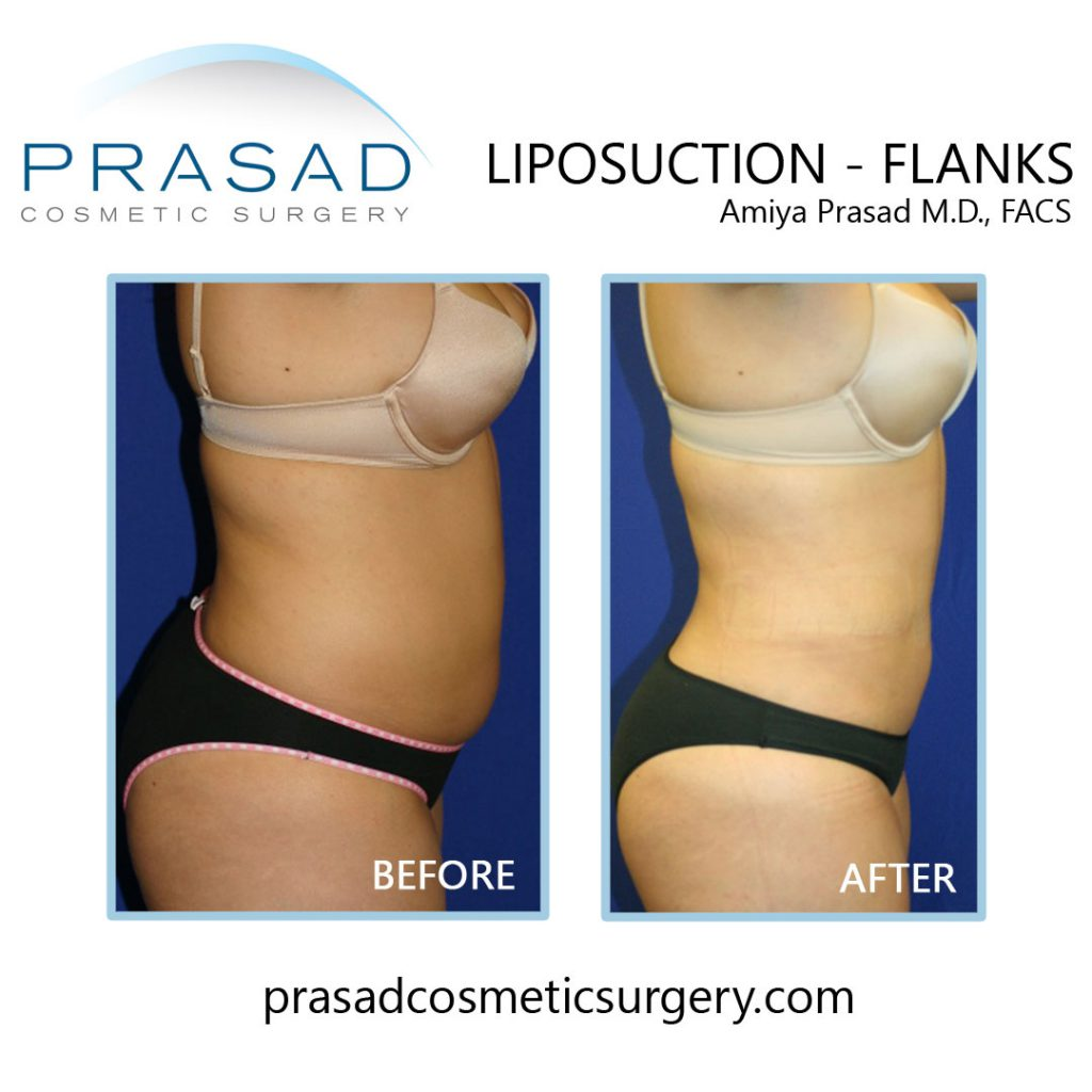 flanks liposuction before and after