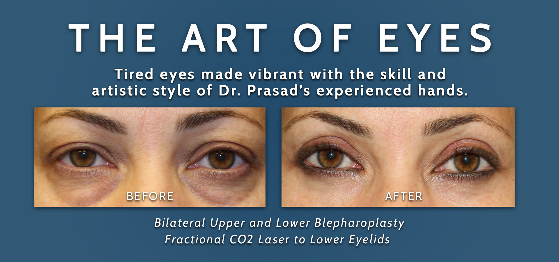 upper and lower blepharoplasty before and after