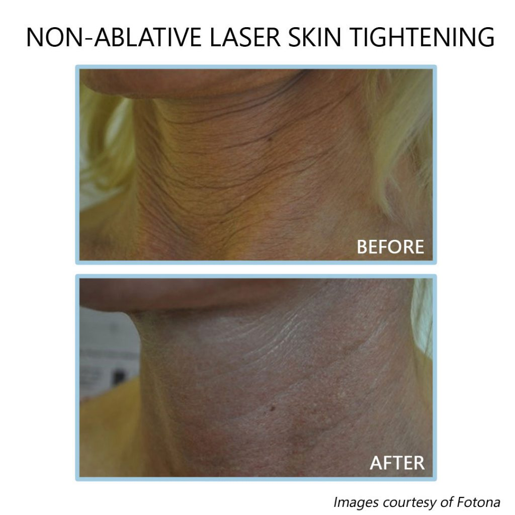 non ablative laser skin resurfacing before and after
