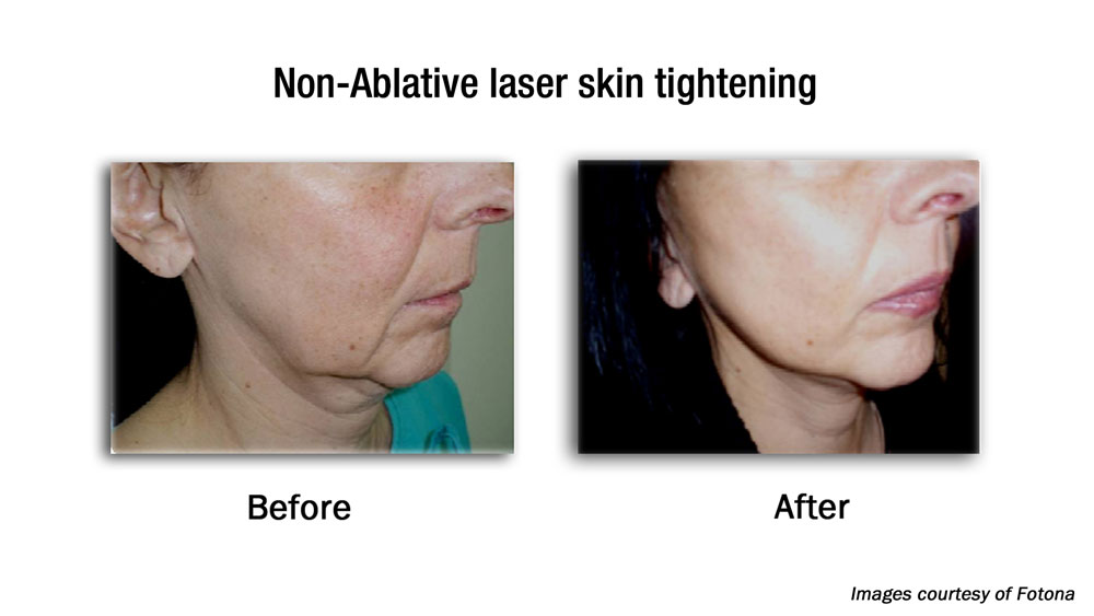 non-surgical fat reduction before and after results