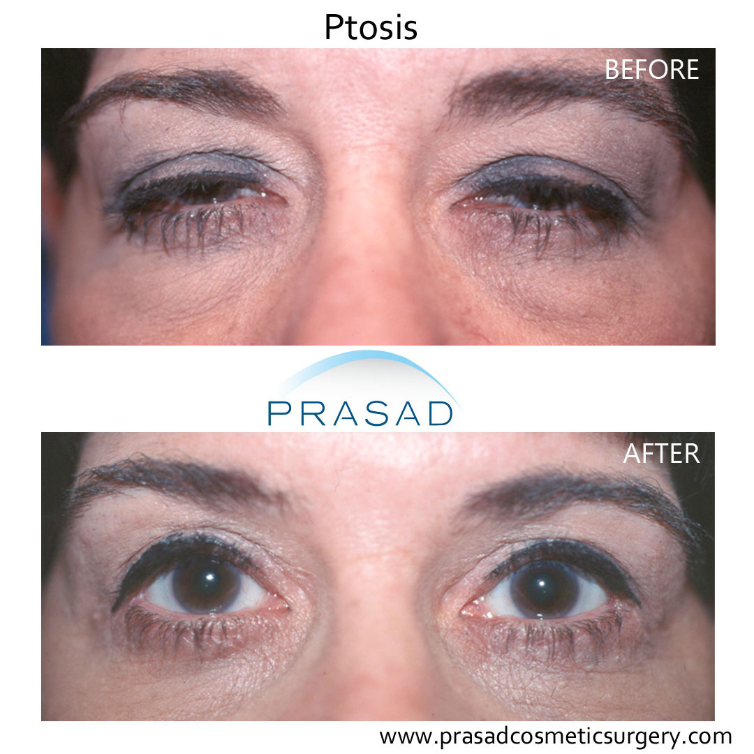 ptosis repair before and after