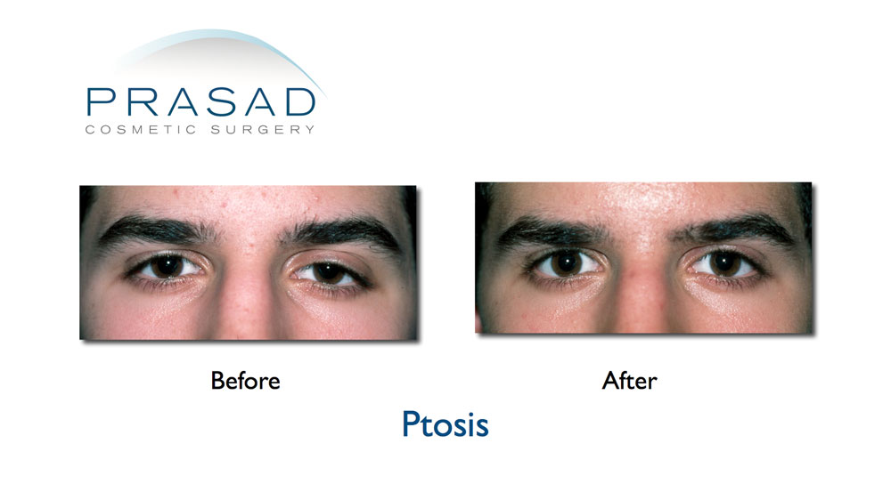 male ptosis repair before and after