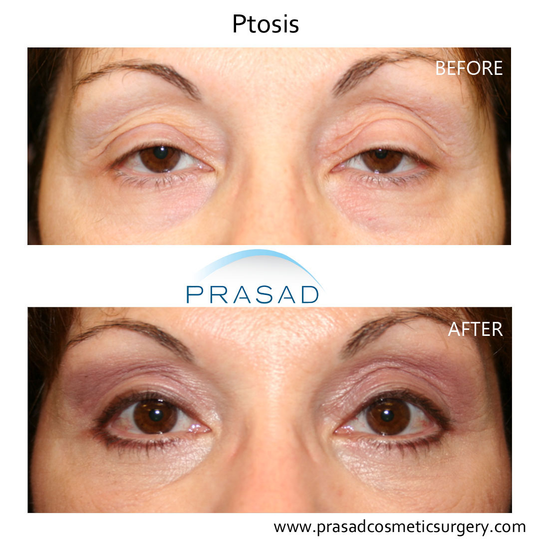 female eyelid ptosis surgery before and after