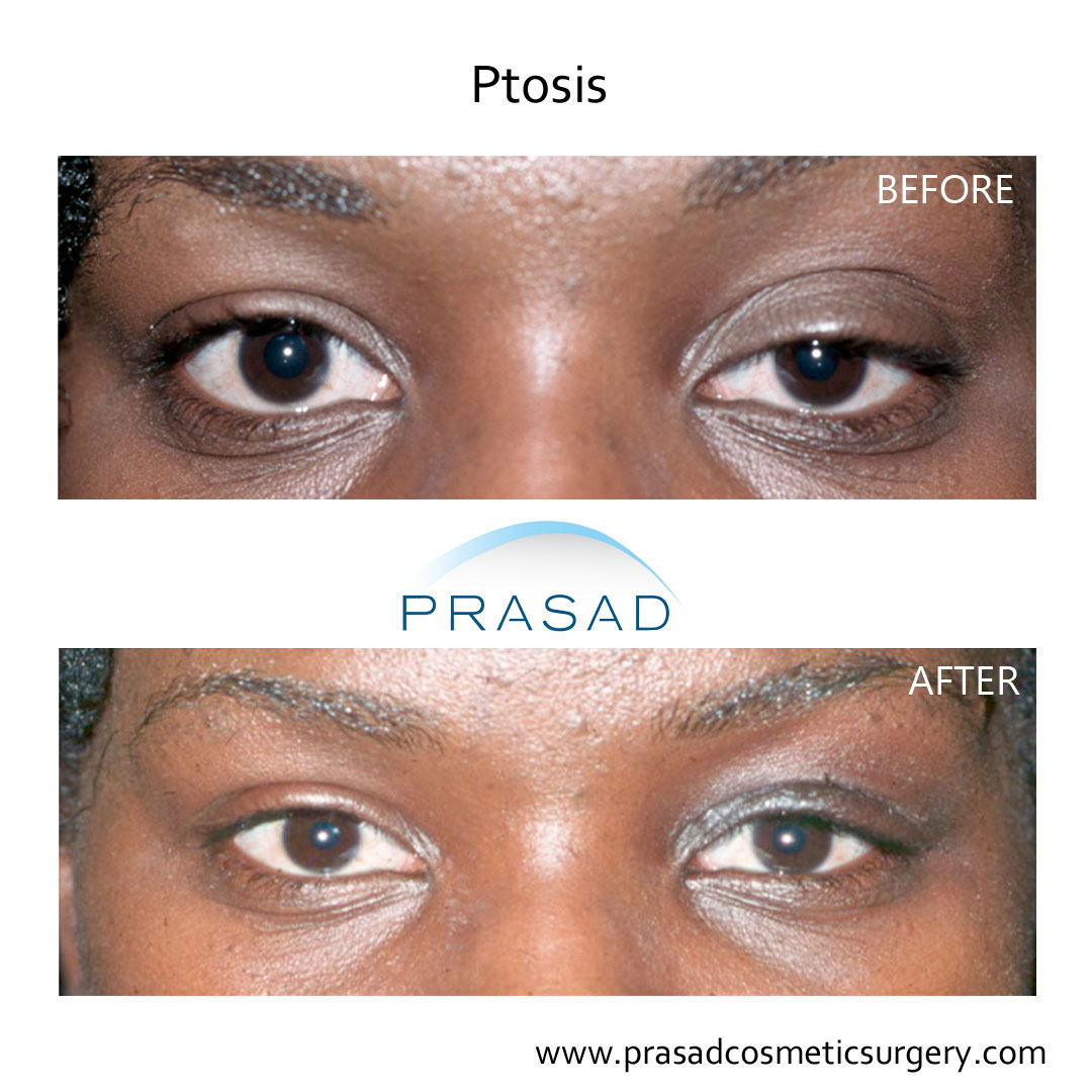 female ptosis repair before and after