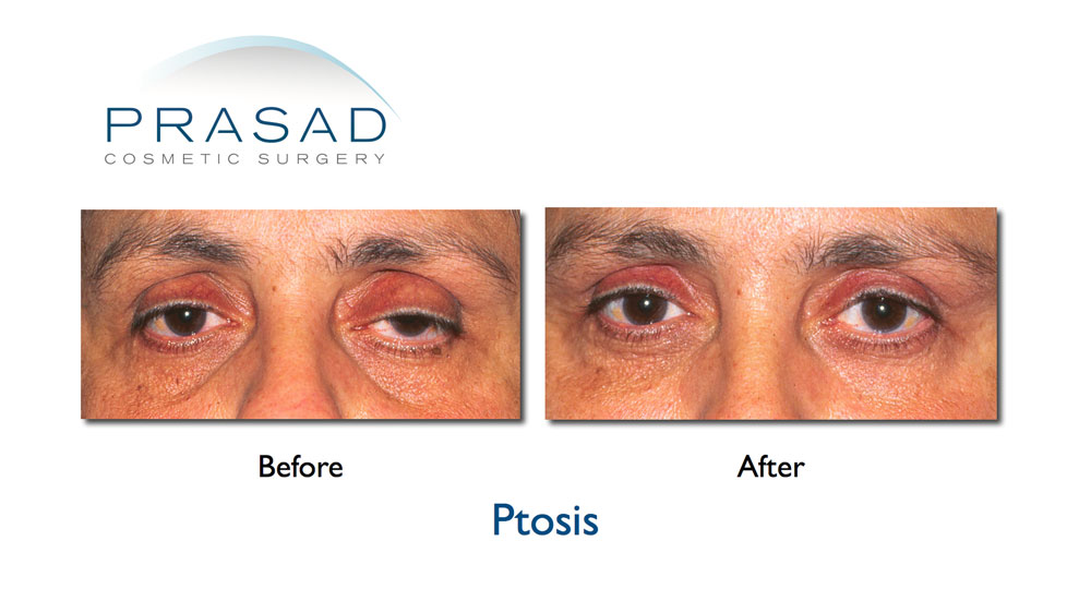 eyelid ptosis surgery before and after