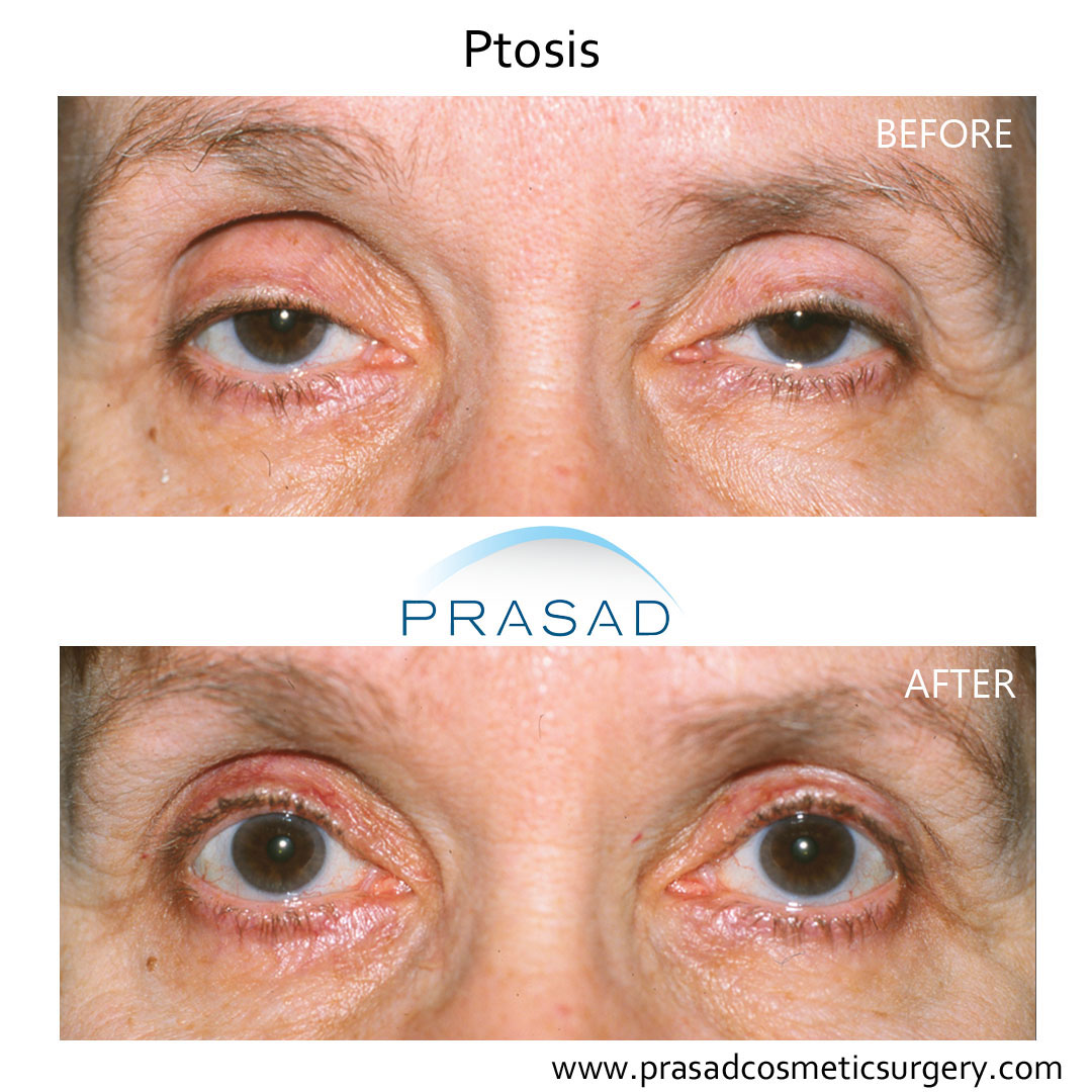 Ptosis surgery recovery