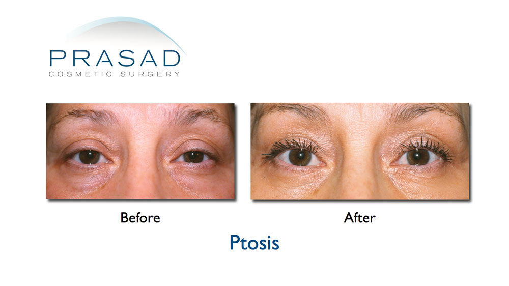 female ptosis surgery before and after