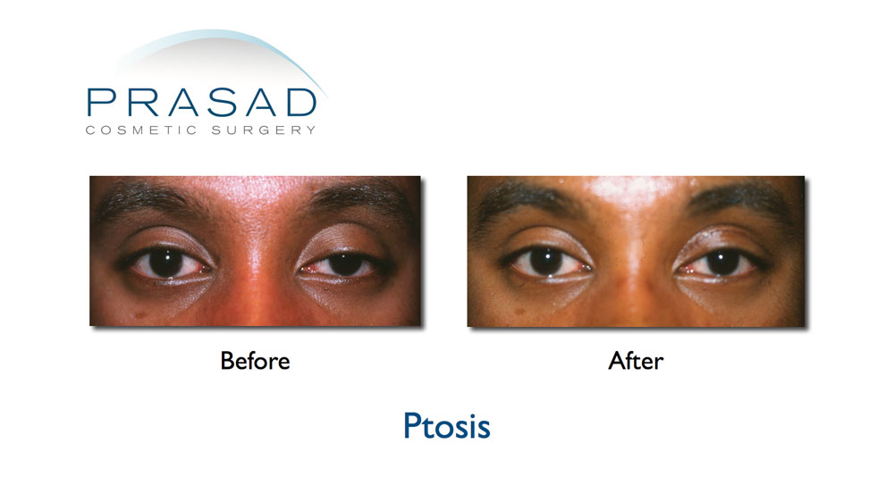 droopy eyelid surgery before and after