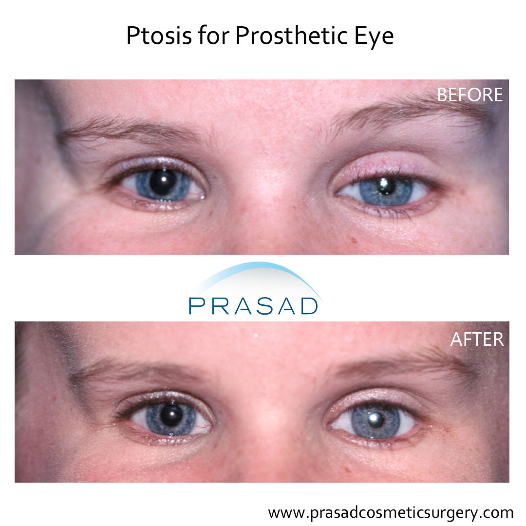ptosis surgery before and after child