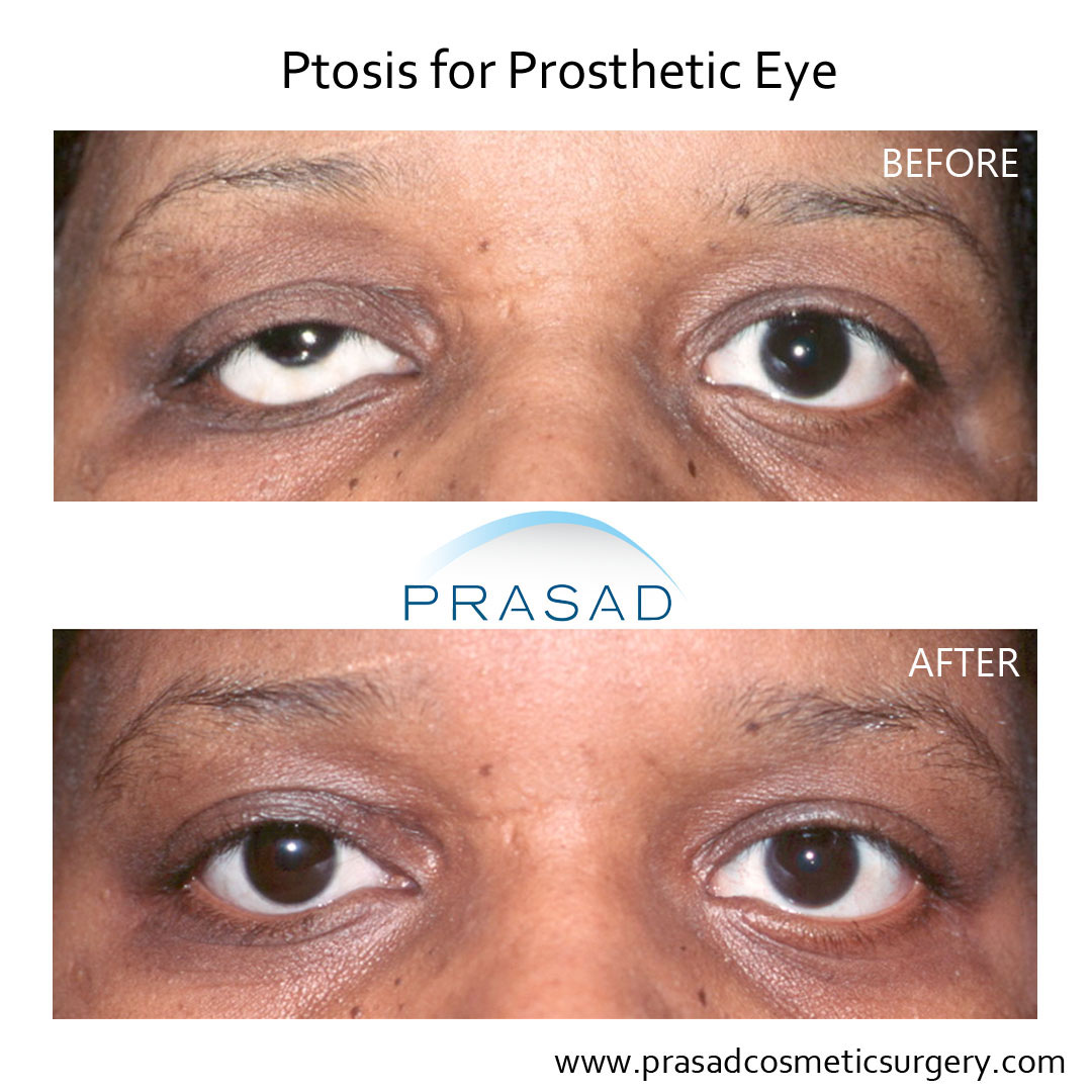 ptosis surgery for prosthetic eye before and after