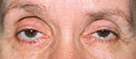 drooping eyelid on old woman