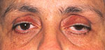 ptosis on old woman