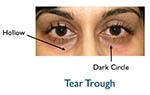 tear trough example