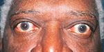 thyroid eye disease on older male