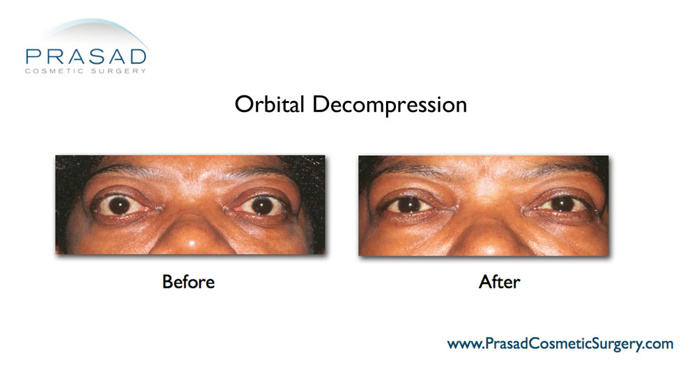 orbital decompression before and after