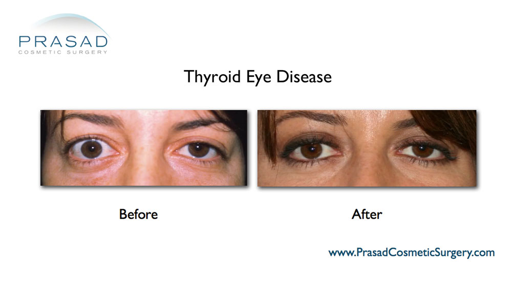 thyroid eye surgery before after