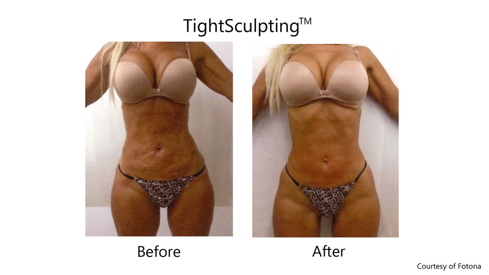 Laser skin tightening before and after results