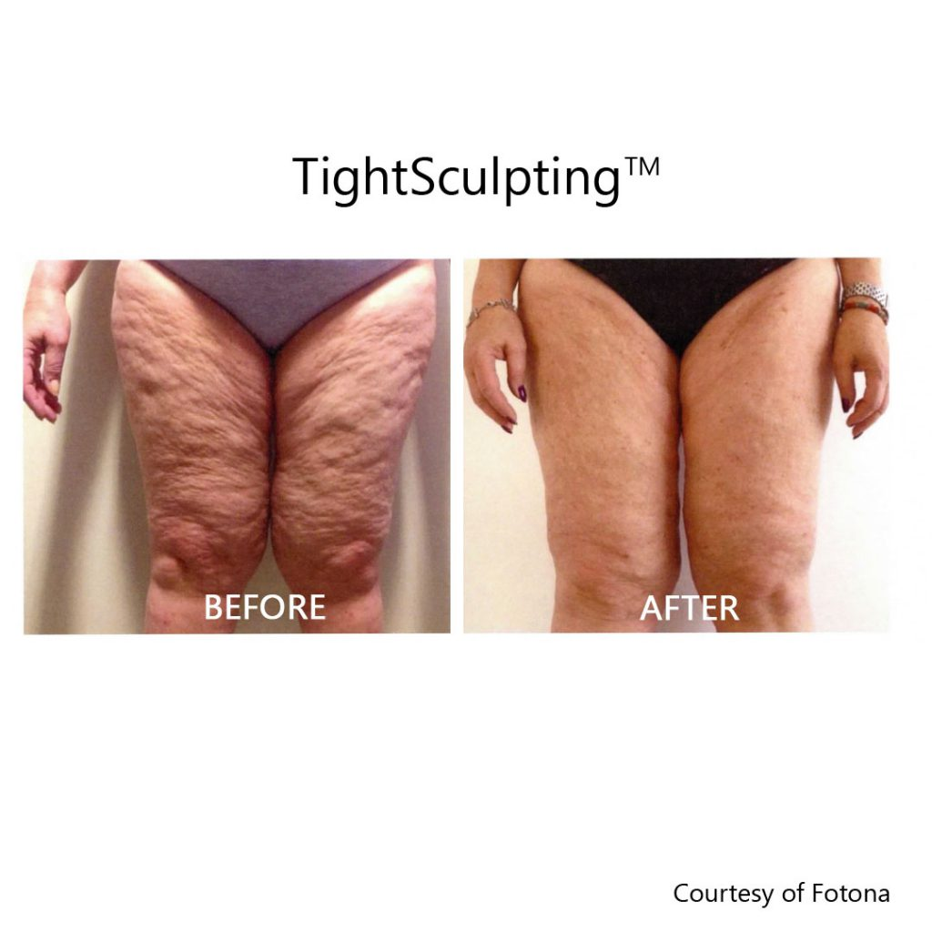 tightsculpting cellulite before and after