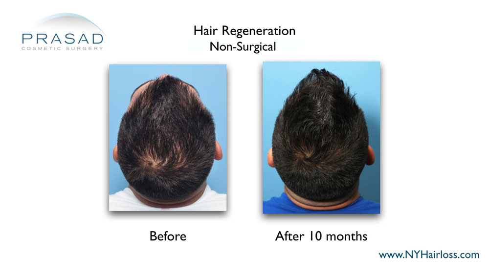 TrichoStem Hair Regeneration before and after 10 months top of scalp view