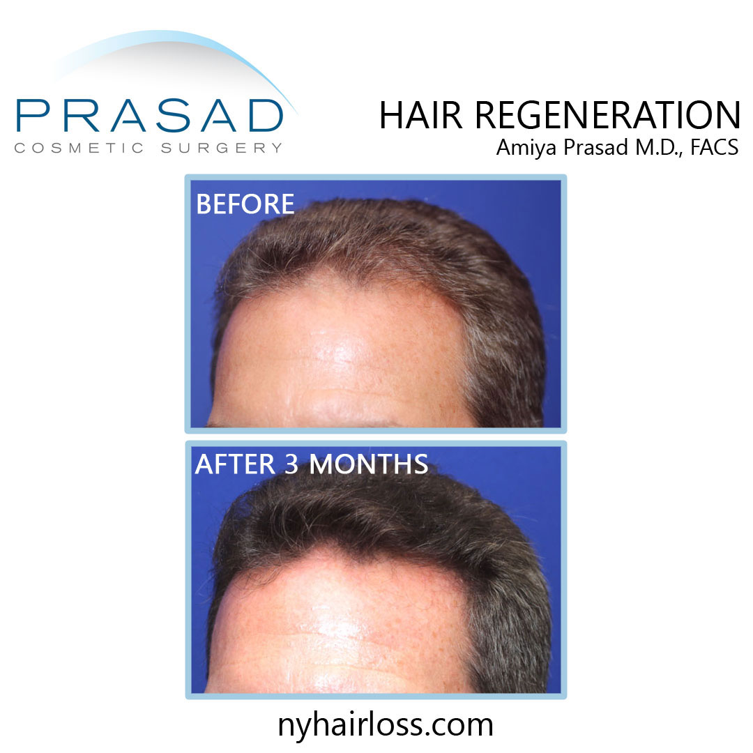 TrichoStem Hair Regeneration before and after 3 months left temple performed by Amiya Prasad MD