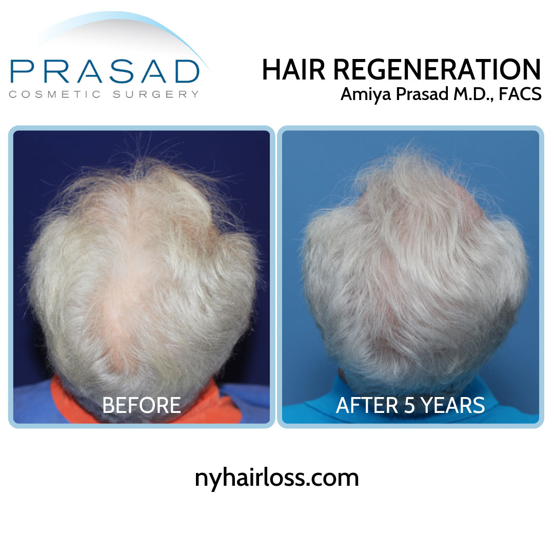 acell + PRP treatment before and after 5 yrs