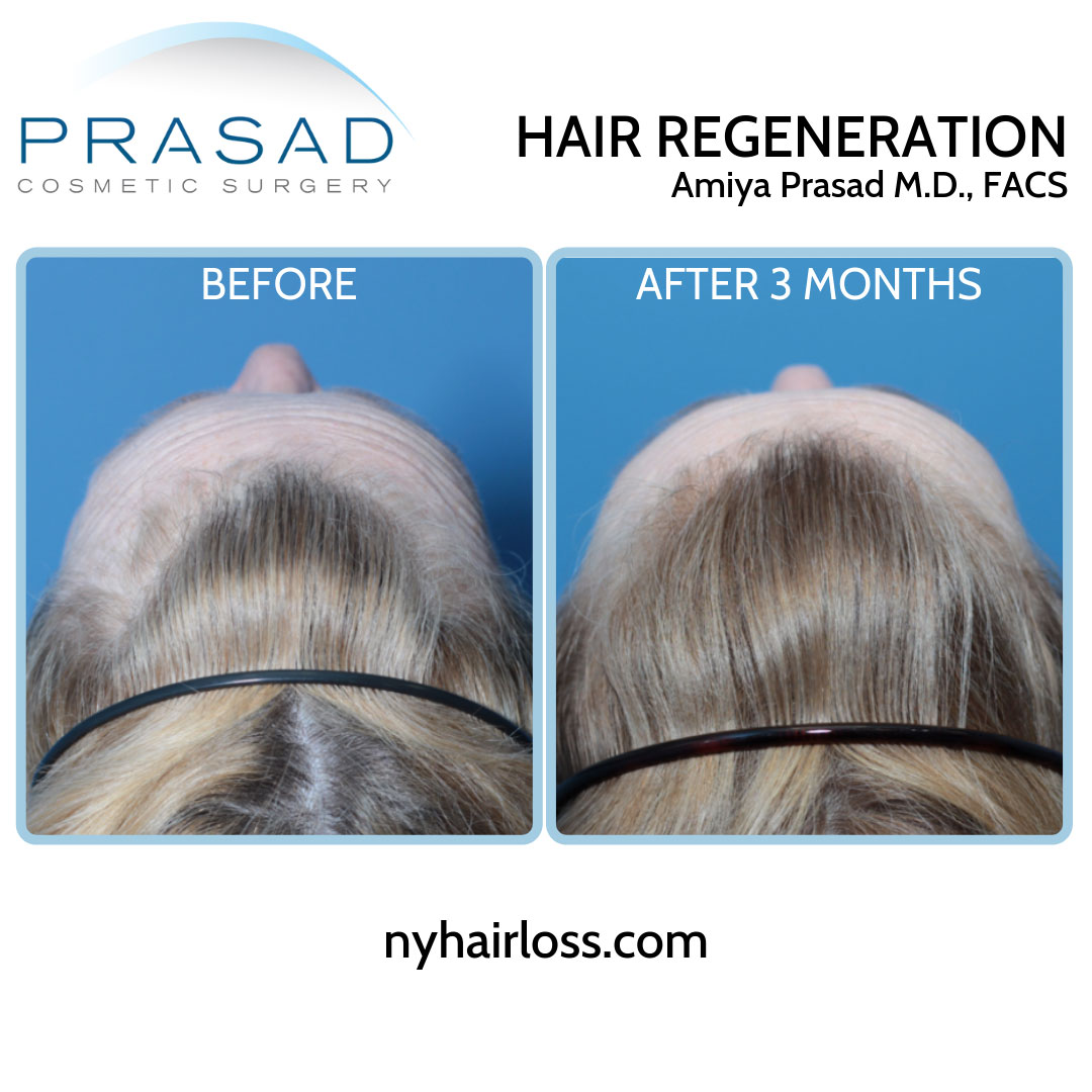 TrichoStem Hair Regeneration female pattern hair loss top of the head view before and after 3 months