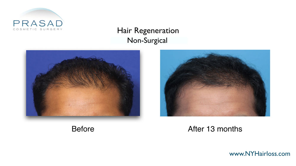 before and after male hair loss treatment, Procedure performed by Dr. Amiya Prasad Manhattan NYC