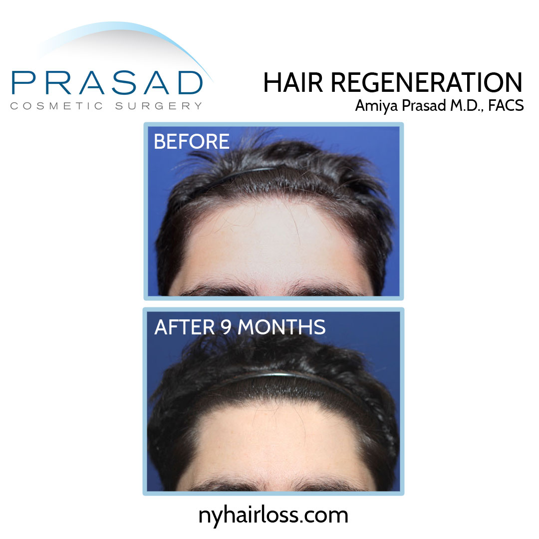 TrichoStem Hair Regeneration male pattern hair loss front view before and after 9 months