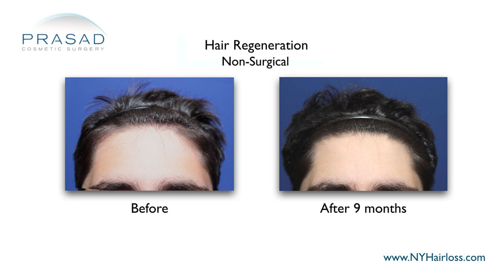Hair Regeneration male pattern hair loss front view before and after 9 months