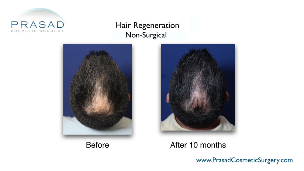 TrichoStem Hair Regeneration top of the head view before and after 10 months performed by Amiya Prasad MD offices