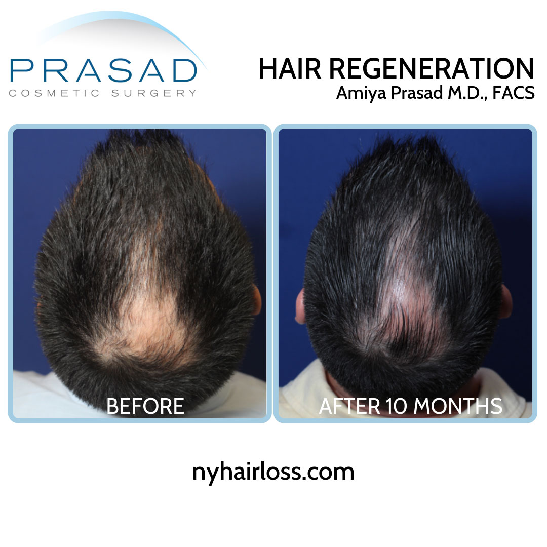 TrichoStem Hair Regeneration top of the head view before and after 10 months performed by Amiya Prasad MD