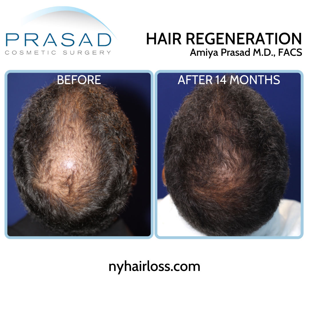 before and after hair regeneration treatment