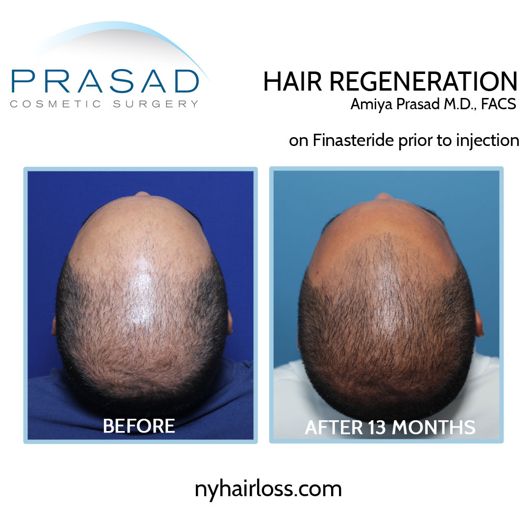 reverse male pattern baldness treatment before and after