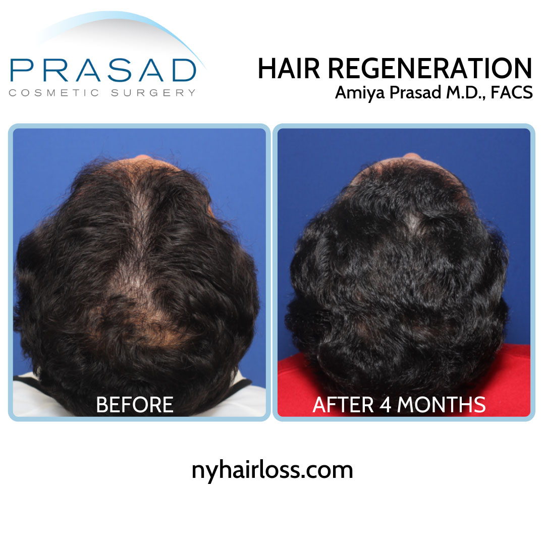 TrichoStem Hair Regeneration top of the head view before and after 4 months