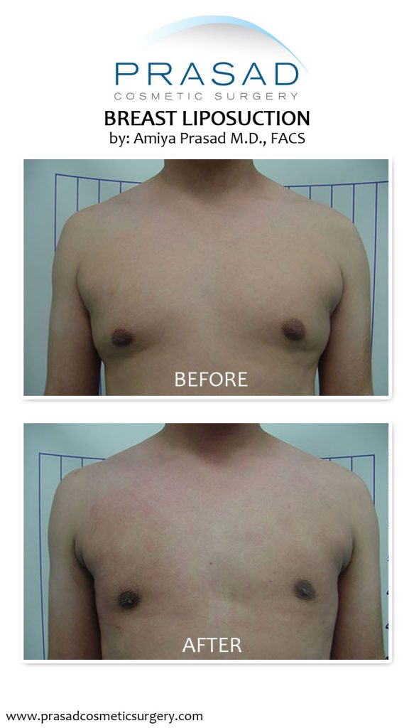 breast liposuction before and after