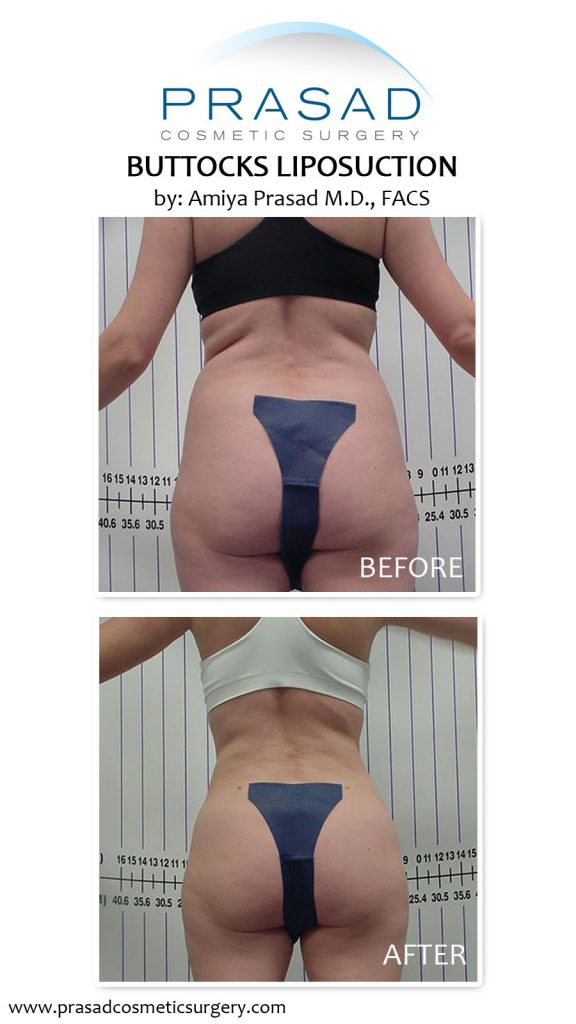 buttocks liposuction before and after