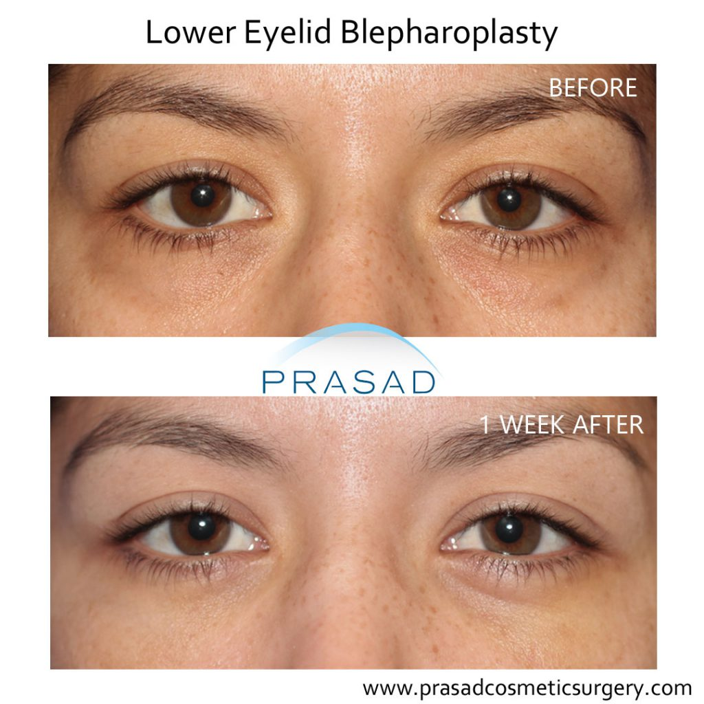 lower blepharoplasty recovery