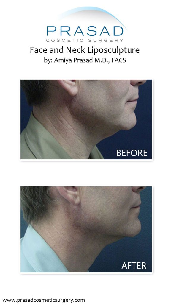 before and after face and neck liposuction performed by Dr. Amiya Prasad