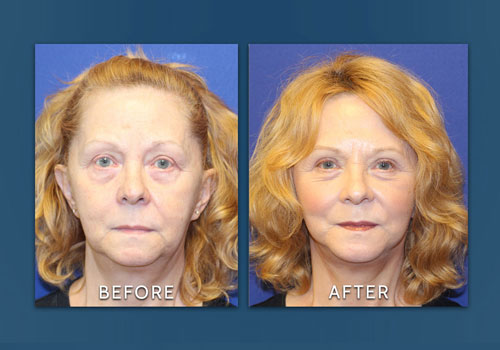 facelift and eyelift before and after