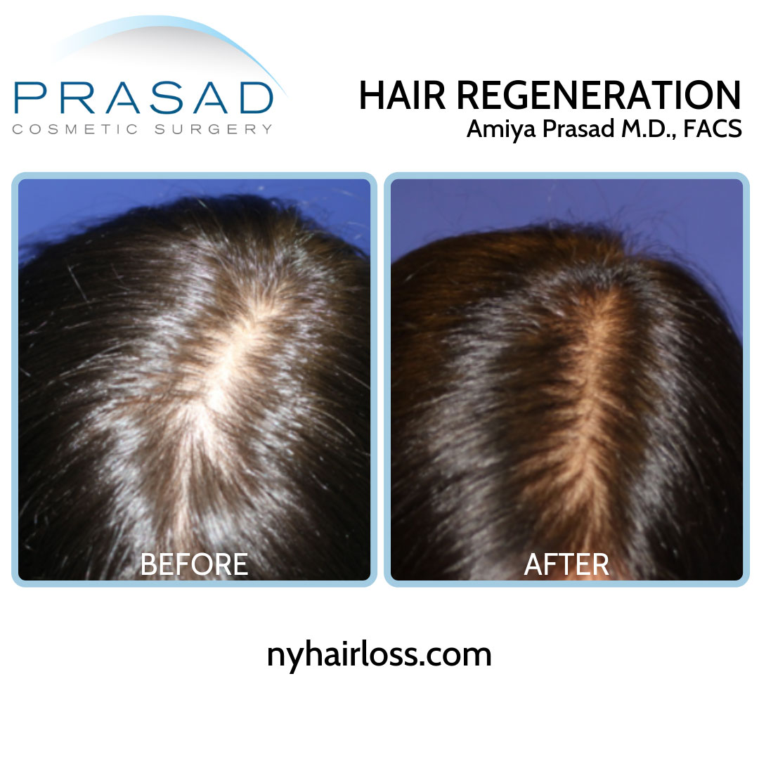 hair loss treatment for female before and after