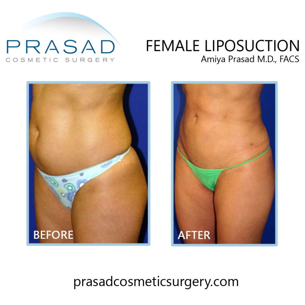 Female liposuction before and after recovery