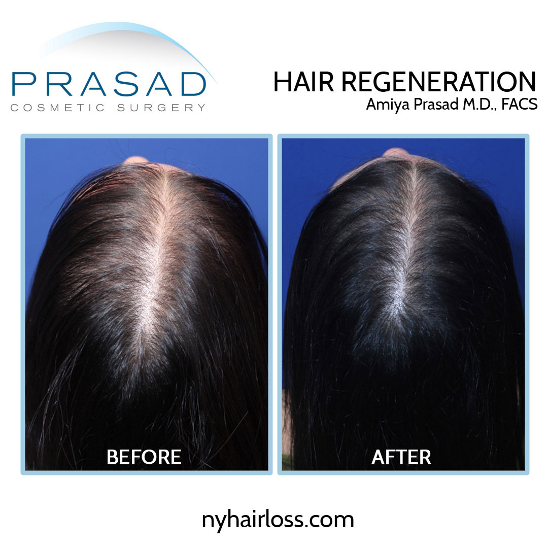 female hair loss treatment before and after