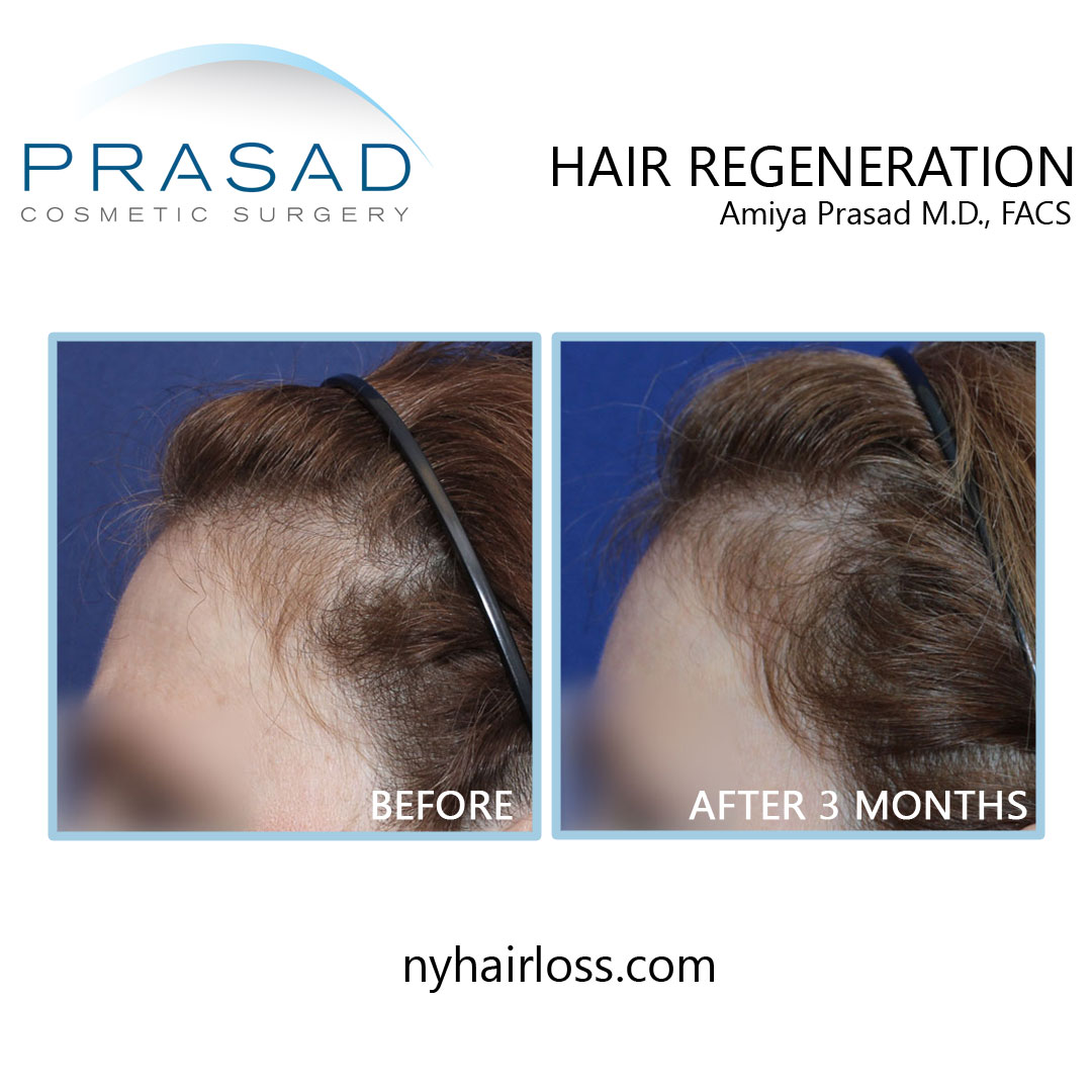 Best hair loss treatment for female before and after