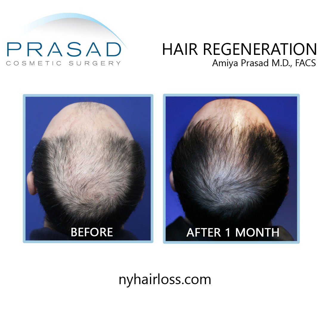 non surgical hair loss treatment before and after 1 month