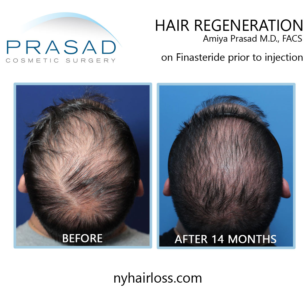 male pattern baldness effective treatment before and after