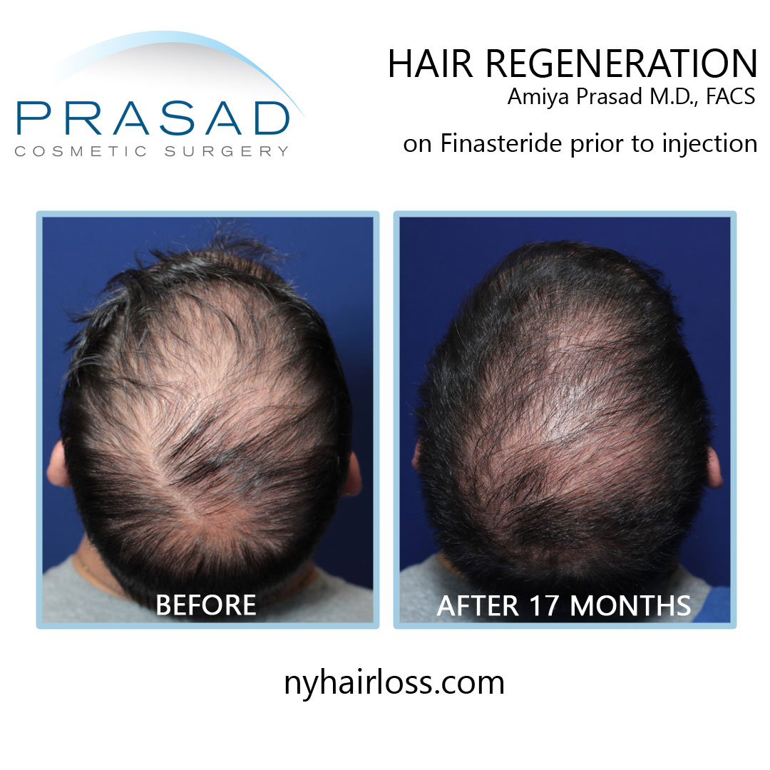 hair regeneration before and after 17 months on finasteride prior to injection face up