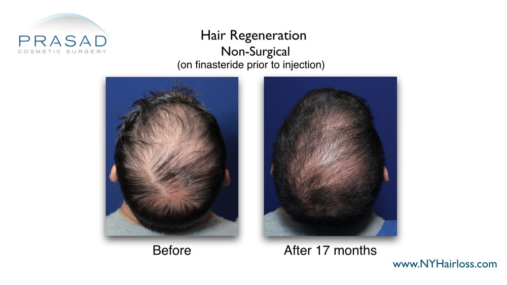 hair regeneration before and after 17 months on finasteride prior to injection