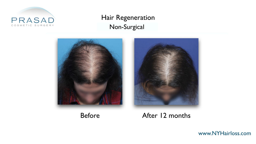 female pattern baldness in 20s treatment before and after