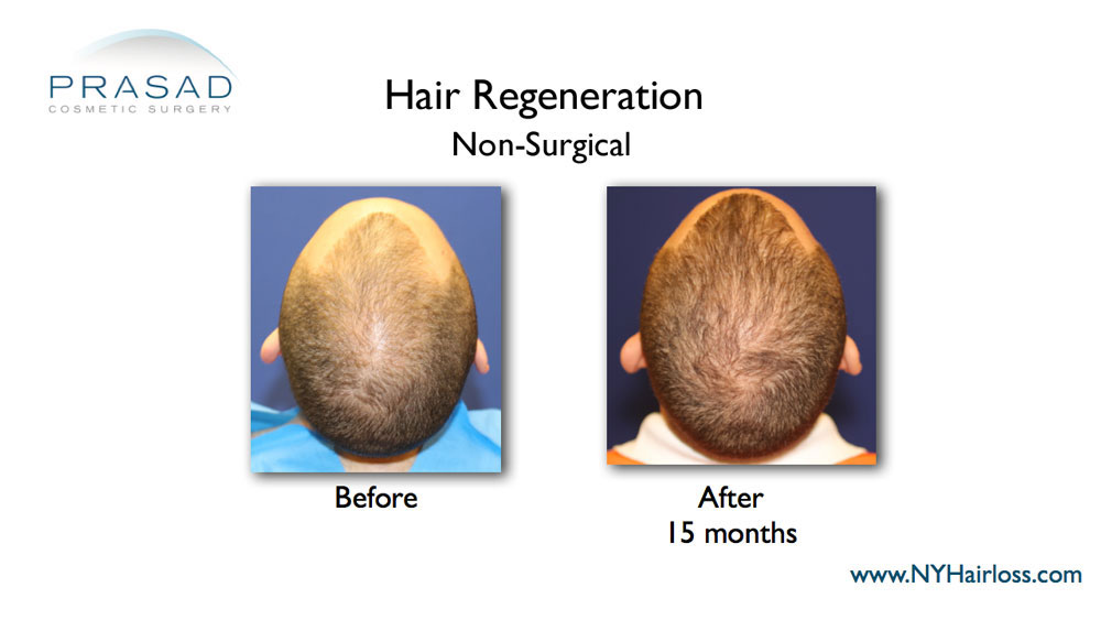 hair regeneration before and after treatment top of the head view