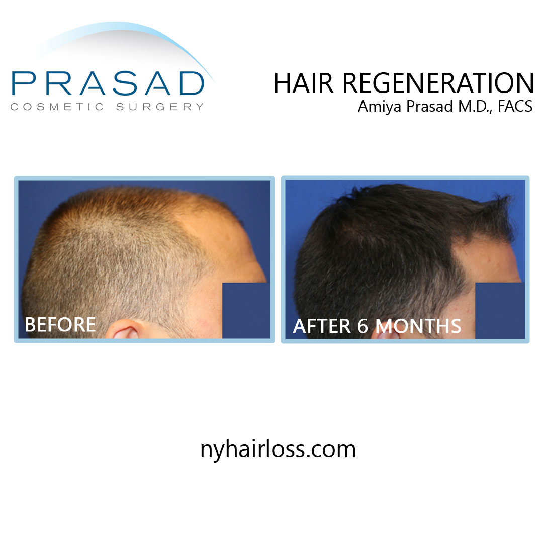 hair loss treatment for men before and after results